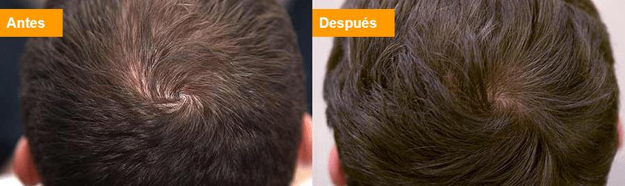 remedios caseros para la caida del cabello