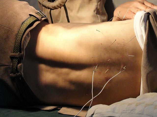 acupuntura para la ereccion